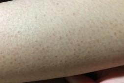 【美天棋牌】尿素膏可以去鸡皮肤吗 什么是鸡皮肤