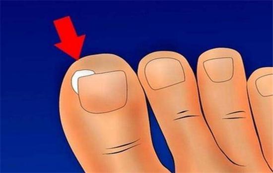 【美天棋牌】脚指甲增厚变形怎么办(脚指甲变形增厚疼痛)