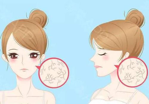 【美天棋牌】皮肤干燥用面膜敷管不管用 皮肤干燥天天敷面膜效果会不会更好呢